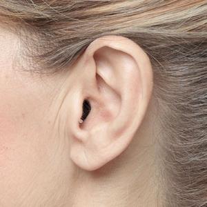 Fonema - Apparecchi acustici tipo - intrauricolari
