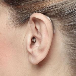Fonema - Apparecchi acustici tipo - retroauricolari